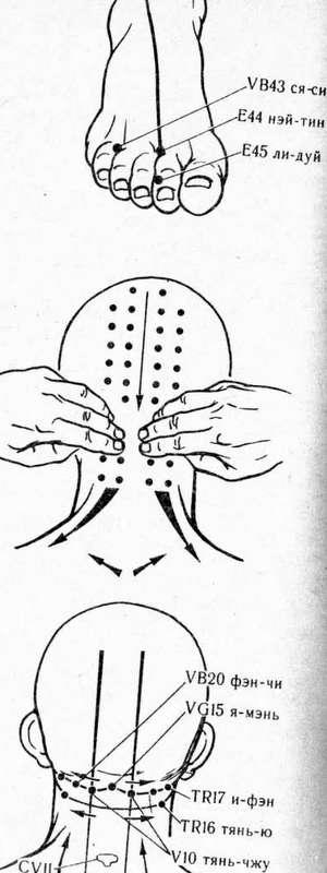 головная боль 2
